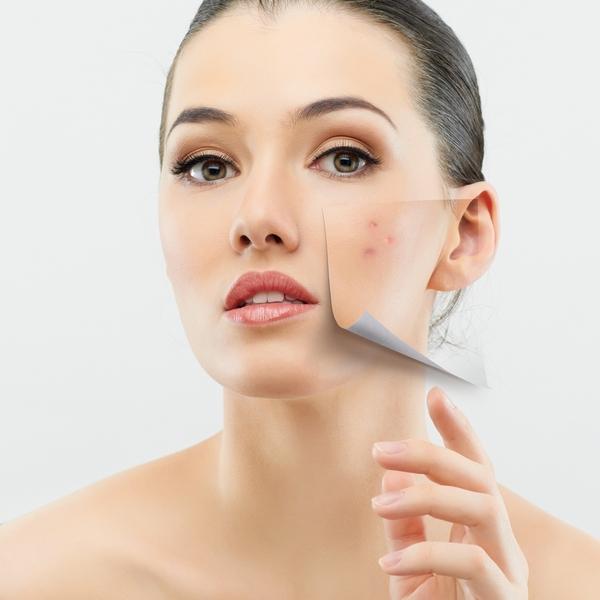 shutterstock 99802049 Очищающие маски для лица с аспирином от акне